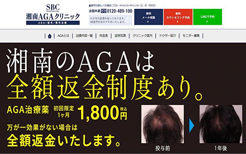 【30代AGA治療7カ月目】湘南美容クリニック!ブログで結果報告。