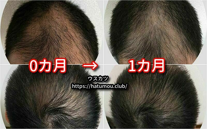 【写真付き】ミノキシジルとフィナステリドの効果を公開!