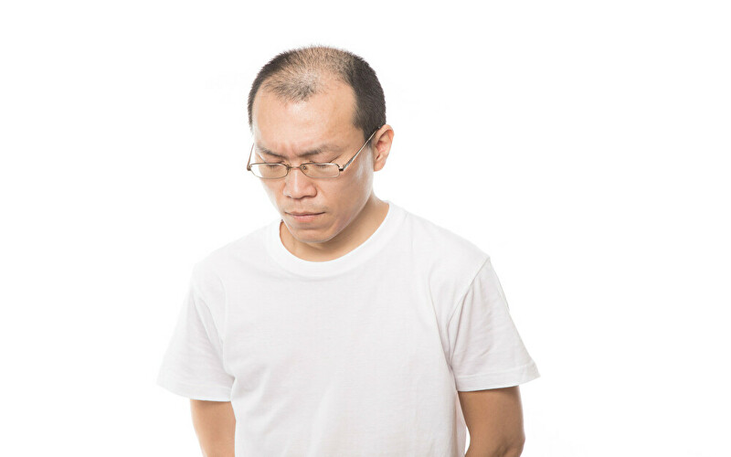 【若ハゲ必見】将来禿げないためにやるべき7つの習慣を完全解説