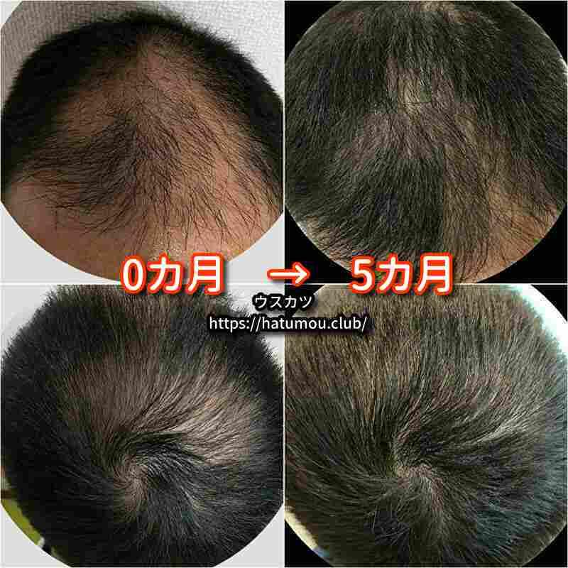 【30代AGA治療5カ月目】湘南美容クリニック!ブログで結果報告。