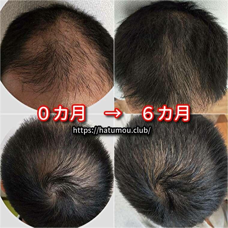 【30代AGA治療6カ月目】湘南美容クリニック!ブログで結果報告。